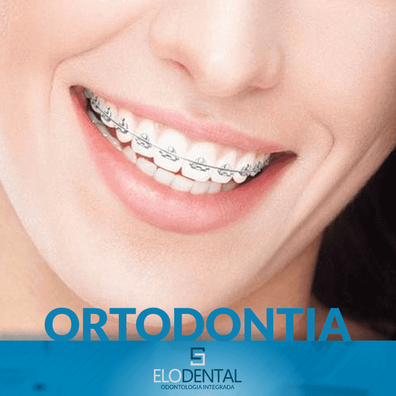 ortodontia porto alegre